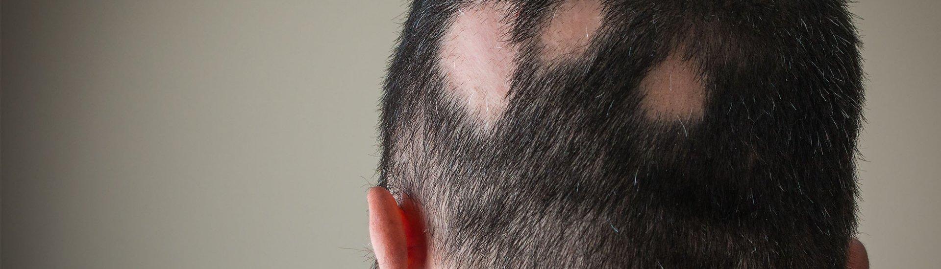 Kreisrunder Haarausfall: Ursachen, Symptome, Therapie